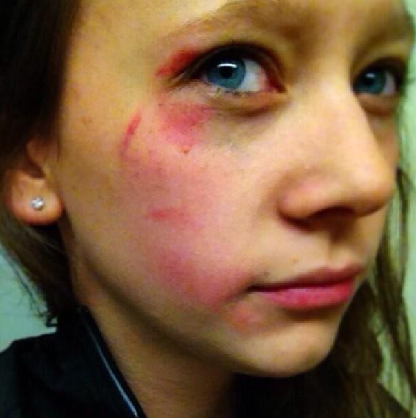 facial jewelry injury gymnastics balance beam