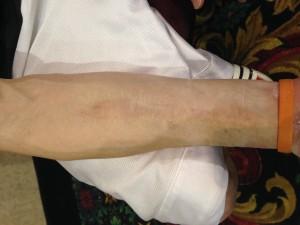 Chris Brooks's scars - 1