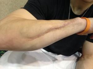 Chris Brooks's scars - 2